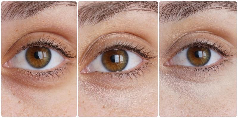 L'Oréal-Lumi-Magique-Primer-Concealer-before-after-pictures-review (1)