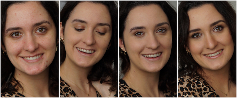 concealer before after