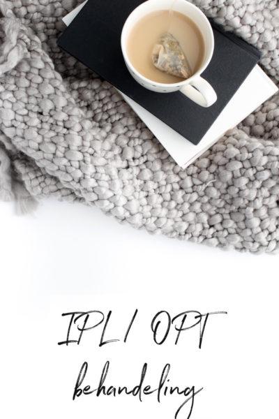Ervaringen Just Wellness Eindhoven IPL / OPT behandeling na 1,5 jaar