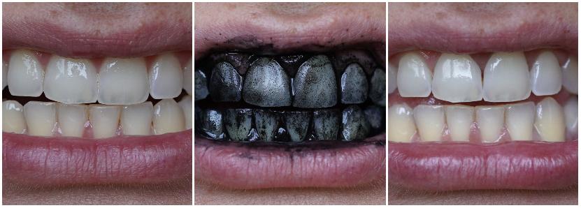 Op een natuurlijke manier je tanden witter maken